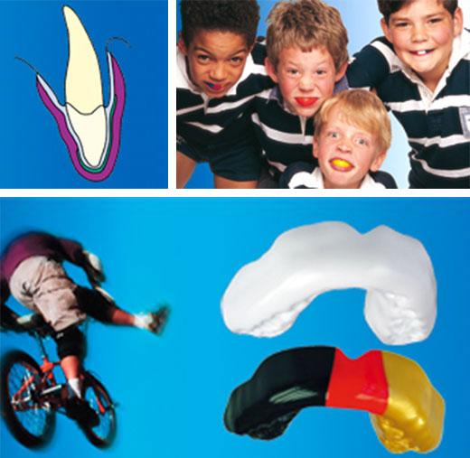 sportmundschutz